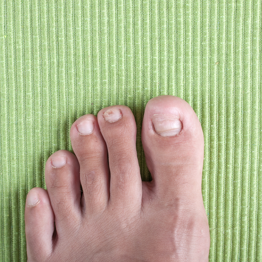 Ingrown Toenails Quality Treatment Of Ingrown Toes In Toronto And